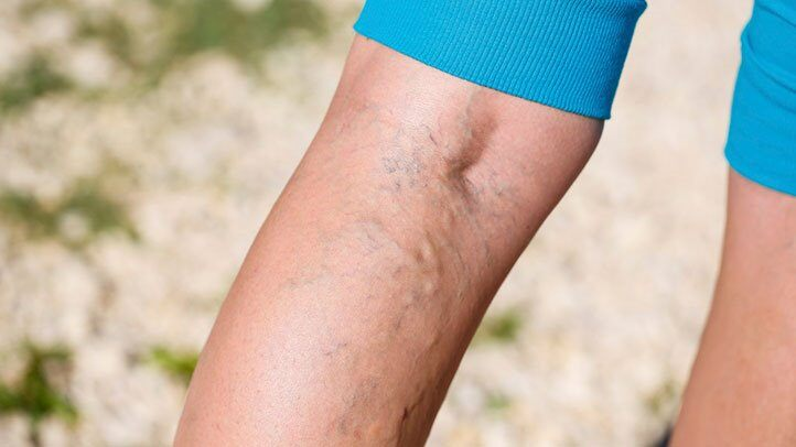 Prevent Varicose Veins exercise2